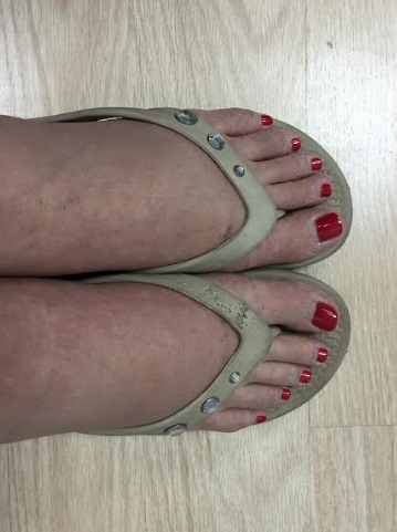 ugly feet.jpg
